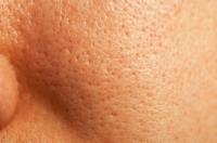 درمان گیاهی سوراخهای ریز صورت / یا منافذ باز صورت