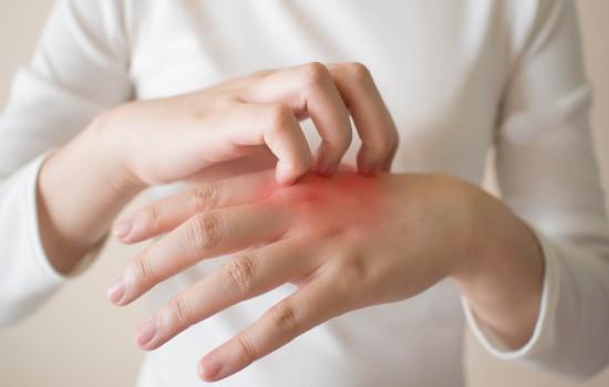 درمان خشکی و اگزمای پوست - داروی گیاهی خارش و اگزما پوست دست و بدن